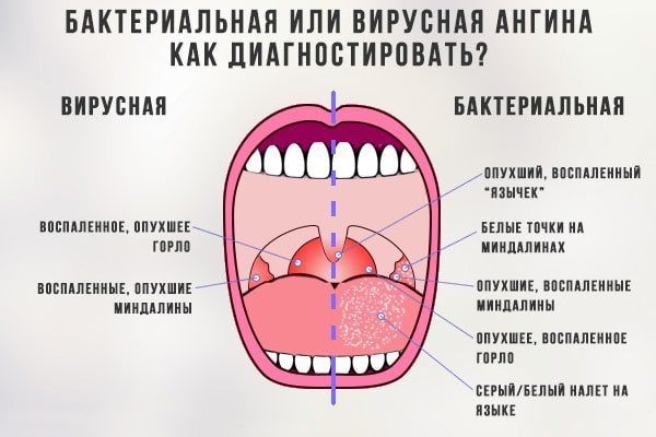 Прежде всего, необходимо выяснить причину возникновения воспалительного процесса в горле