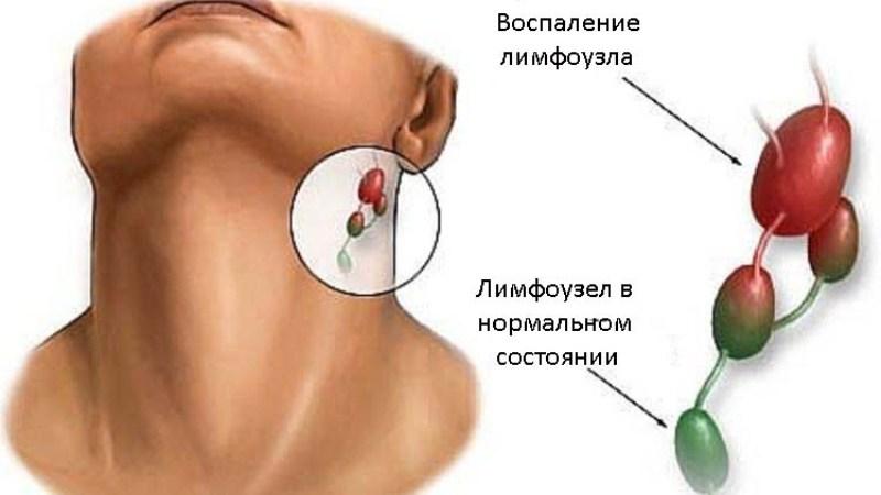 При простудных заболеваниях зачастую воспаляются лимфатические узлы