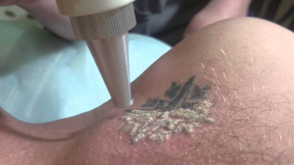 Процесс удаления татуировок лазером
