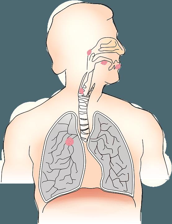Инфекция может проникать из верхних дыхательных путей в трахею, бронхи и лёгкие