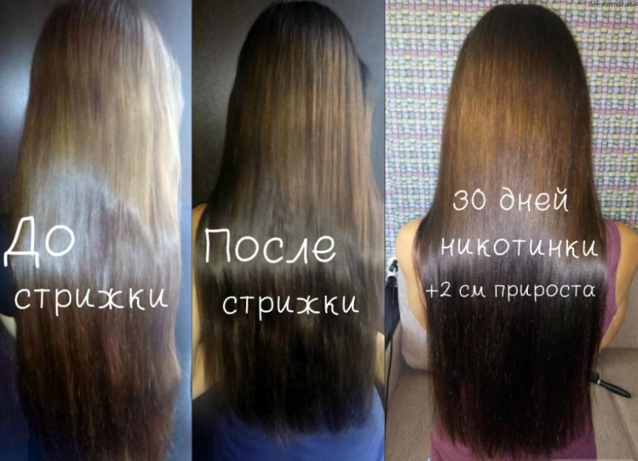 Использование Никотиновой кислоты для волос