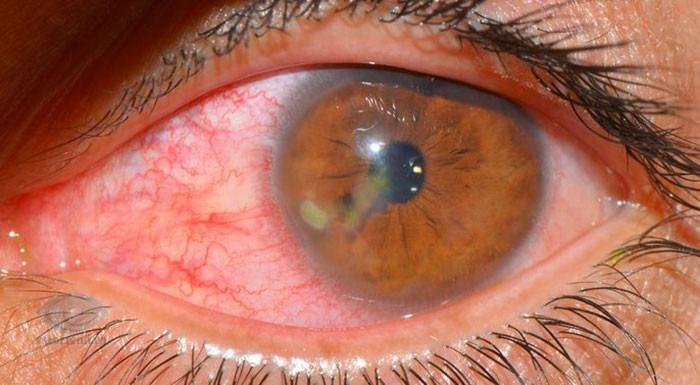Герпес роговицы глаза