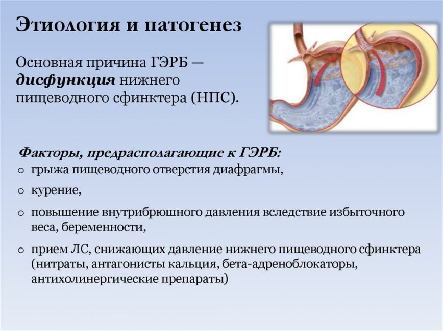 Причины и механизм развития ГЭРБ