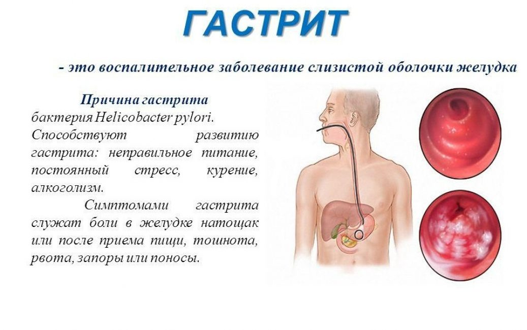 Гастрит и его симптомы