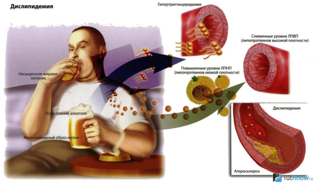 Вред холестерина