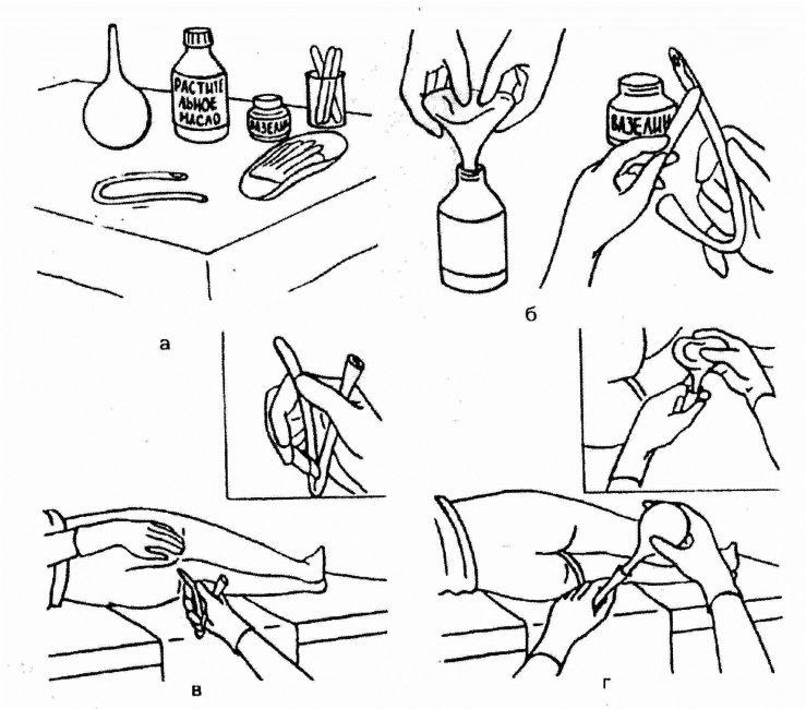 Схема масляной клизмы