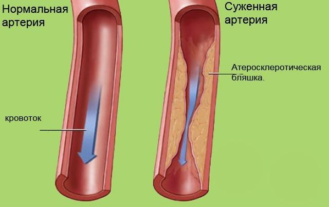Сравнительный анализ засоренной токсинами артерии и здоровой