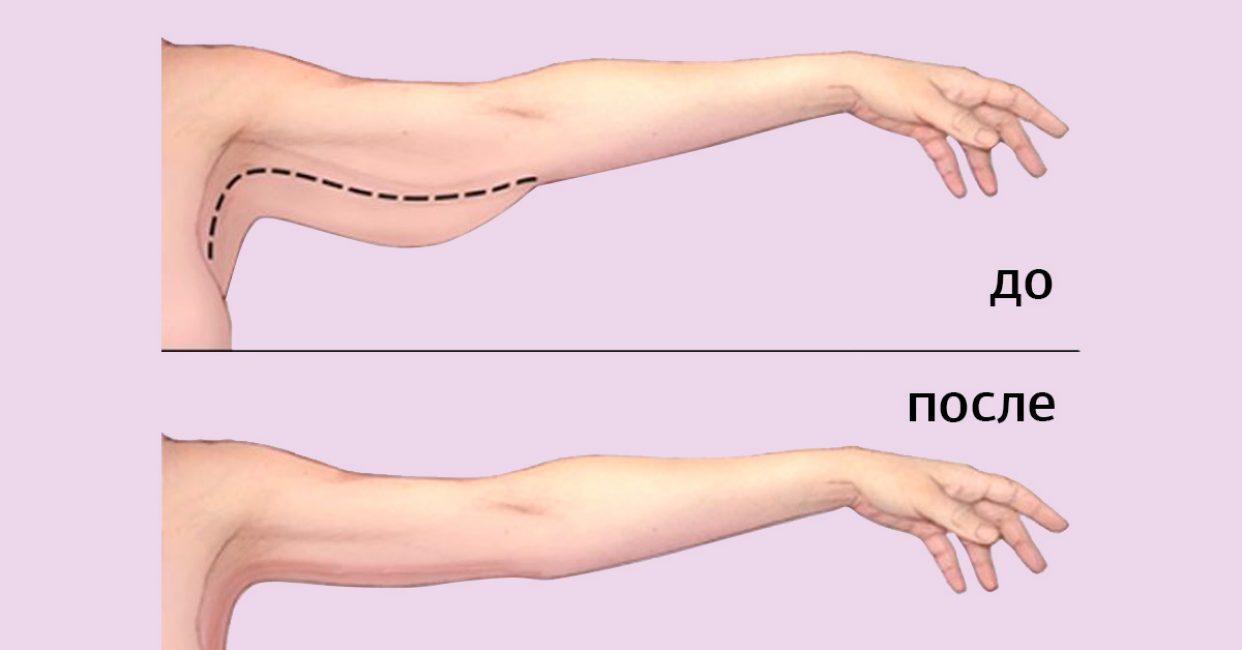При помощи упражнений можно изменить руки до неузнаваемости