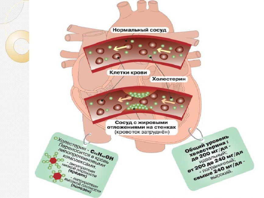 Холестерин и его показатели в крови