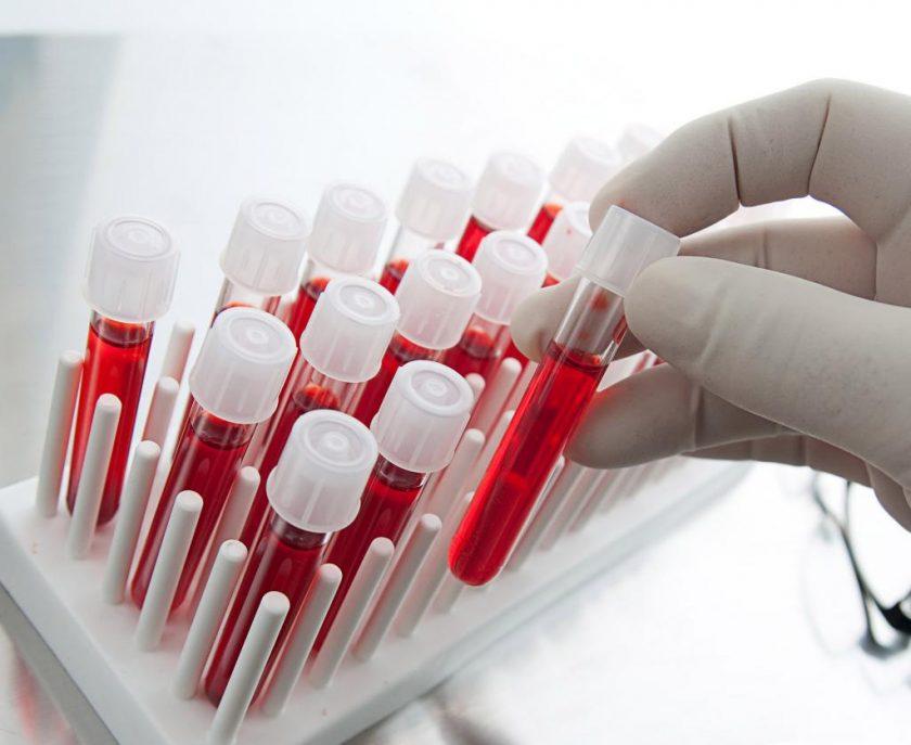Общий (клинический) анализ крови: нормы, расшифровка