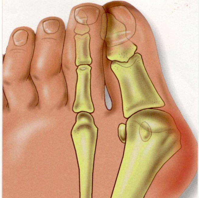 Как выглядит деформация больного пальца ноги