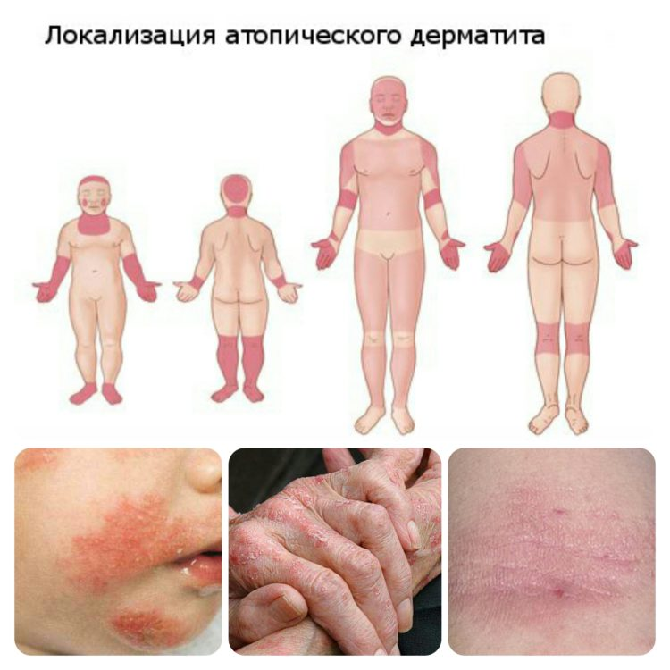 Частая локализация атопического дерматита