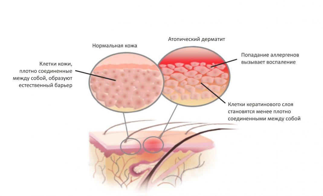 Развитие атопического дерматита