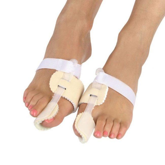Пример ортопедических корректоров при появлении косточки