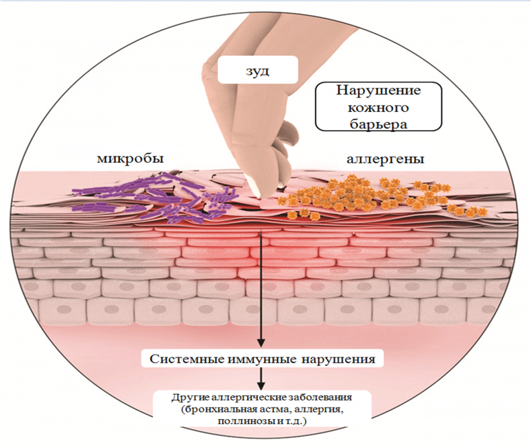 Особенности развития дерматита