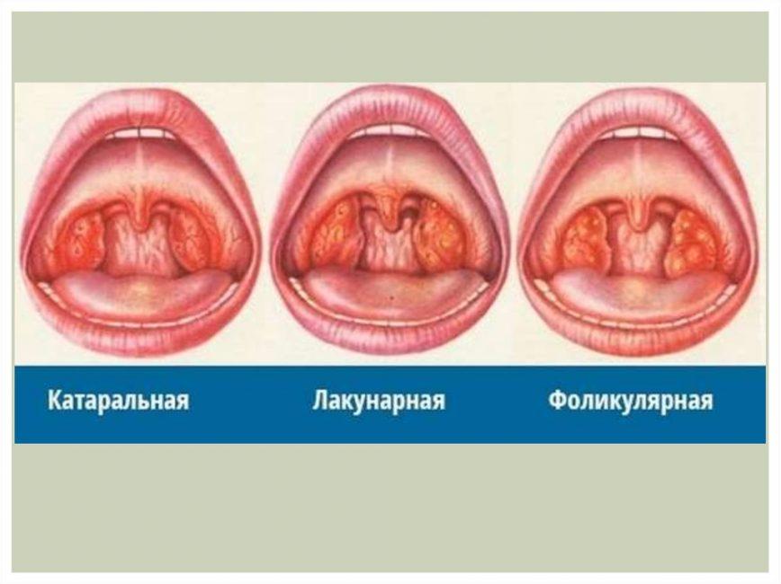 Степени тяжести развития ангины у ребенка