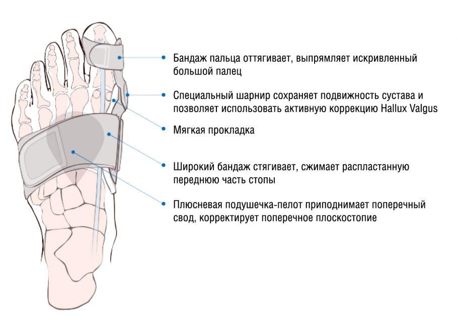 Влияния ношения бандажа на косточку пальца