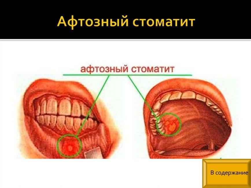 Клиническая картина афтозного стоматита