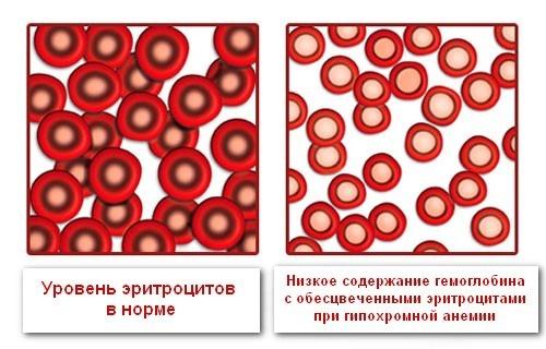 Изменение эритроцитов при снижении цветового показателя