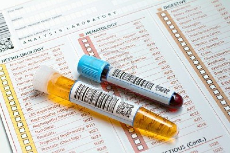 Уровень мочевины проверяется по результатам анализа крови