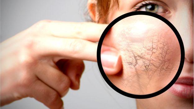 Один из симптомов заболевания – сухость кожи