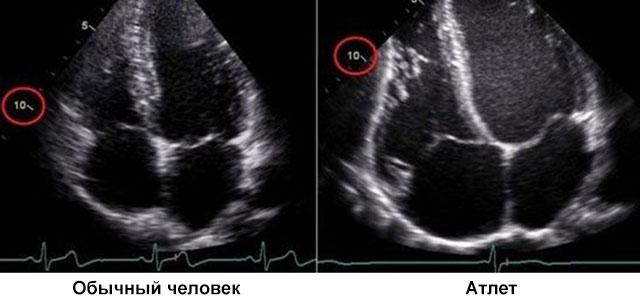 Изображение - Значение пульса и давления 4-43