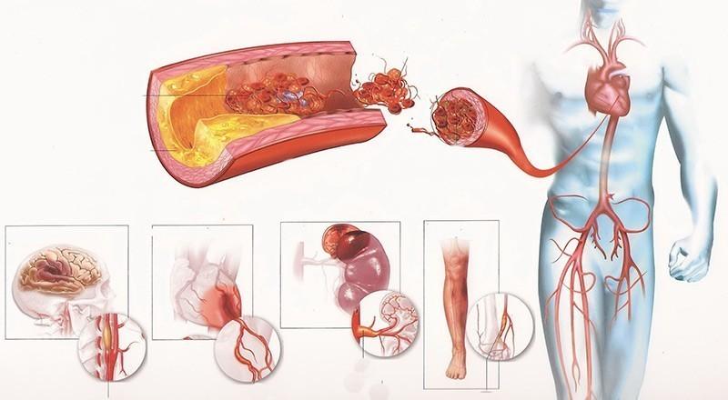 Изображение - Значение пульса и давления 6-38