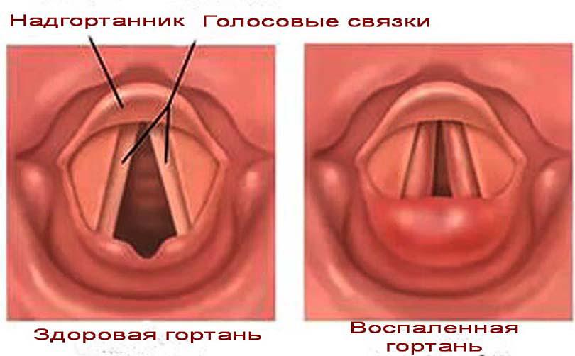 Иллюстрация здоровой и воспаленной гортани