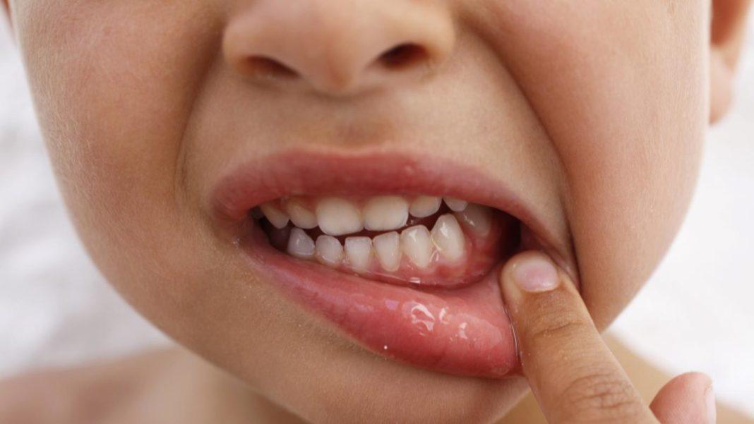 Болит десна и зуб у ребенка