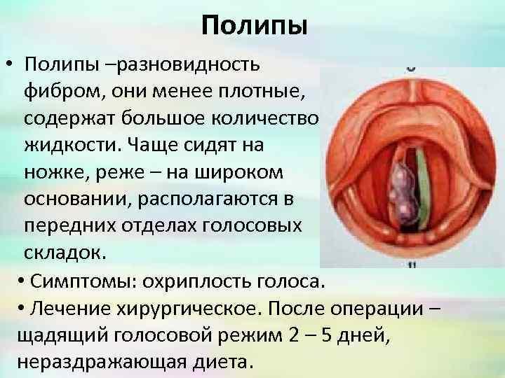 Полипы нуждаются в хирургическом лечении