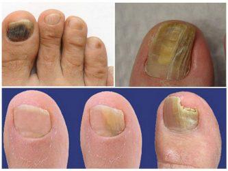 Грибок на пальцах и ногтях рук и между ними: на большом, как выглядит, средства, методы и способы лечения+ 65 ФОТО