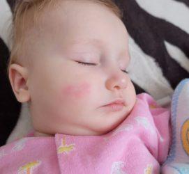 Сыпь на теле у детей: мелкая красная сыпь, без температуры, с температурой, с зудом + 90 ФОТО