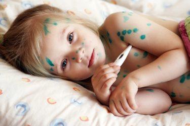 Ветрянка у детей: инкубационный период, первые симптомы, лечение + 60 ФОТО