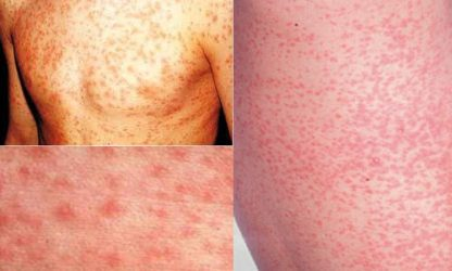 Как проявляется краснуха у детей: симптомы на начальной стадии, лечение + 50 ФОТО сыпи